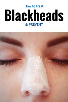 Great tips on avoiding those nasty blackheads!!!