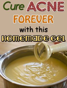Here is a homemade recipe to treat your acne naturally.