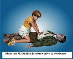 Manovra di Heimlich nell'adulto non cosciente