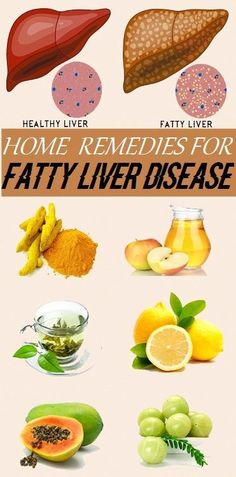 Home Remedies for Fatty Liver Disease. Liver Detox Drink, Liver Detox Cleanse, Detox Drinks, Natural Liver Detox, Natural Cleanse, Natural Health, Healthy Liver, Healthy Foods