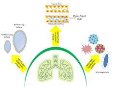 Revisiting Pulmonary Diseases using Microfluidic Technology by Sanjeev Kumar Mahto Sanjeev Kumar, Respiratory System, Asthma, Disorders, Journal, Technology, Tech, Tecnologia
