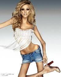anorexia imagenes