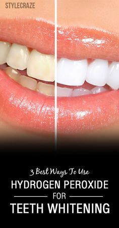 Can you use hydrogen peroxide for teeth whitening? Will it help you remove those yellow stains? Yes, 3% hydrogen peroxide solution is safe for teeth bleaching Teeth Whitening Remedies, Natural Teeth Whitening, Whitening Kit, Skin Whitening, Hydrogen Peroxide Teeth, Diy Beauty Hacks, Beauty Tips, Beauty Ideas, Teeth Bleaching
