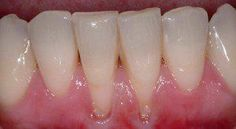 regrow gumline - Have great hygene , brush and floss regularly but gums receding. receding gums not always from gum disease, could be vitamin def. Gum Health, Teeth Health, Healthy Teeth, Dental Health, Dental Care, Oral Health, Dental Hygiene, Gum Disease Treatment, Health Tips