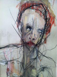 migraine? By Kris Hargis