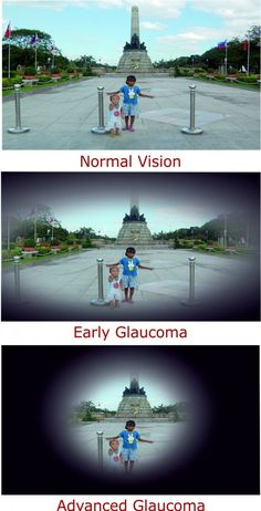Glaucoma is one of the common eye conditions found in people. One can lose their vision due to this disease. It's not completely curable but one can take precautions at earlier stage of glaucoma. This blog helps you to understand types & tips to prevent glaucoma.