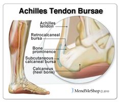 The retrocalcaneal bursa and subcutaneous calcaneal bursa protect the Achilles tendon from damage due to friction. Heel Pain, Foot Pain, Ankle Pain, Haglunds Deformity, Achilles Pain, Psoas Muscle, Muscle Pain, Calf Muscles, Plantar Fasciitis