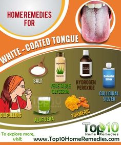 The tongue is one of the strongest muscles in the body. It helps us taste food, swallow and talk. A healthy tongue is pink in color and covered with small nodules called papillae. Top 10 Home Remedies, Natural Home Remedies, Holistic Remedies, Health Remedies, Oral Thrush Remedies, Flu Remedies, White Coated Tongue, Oral Health, Health And Wellness