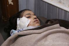 シリア軍が学校空爆、生徒17人死亡 国際ニュース:AFPBB News  シリア軍が実施したとされる空爆で負傷した北部アレッポ(Aleppo)・アンサリ(Ansari)地区の学校の生徒(2014年4月30日撮影)。(c)AFP/AMC/ZEIN AL-RIFAI Syrian Children, Syria