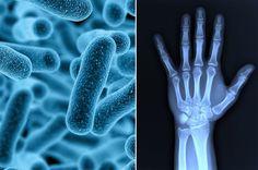 Dolor de articulaciones est� relacionado con bacterias en el intestino