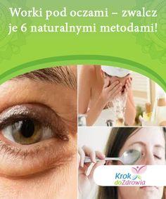Worki pod oczami - zwalcz je 6 naturalnymi metodami! Worki pod oczami mogą się pojawić również u osób młodych z powodu zaburzenia gospodarki hormonalnej, zatrzymania płynów w organizmie czy problemami z krążeniem. Zobacz jak z nimi walczyć.