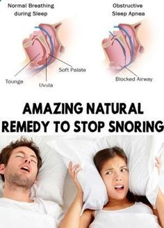 Amazing Natural Remedy To Stop Snoring