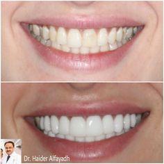 Emax Veneers by Dr. Haider Alfayadh, Cosmetic and Implantology Specialist  For more information and appointments please call us on 17131123 or 39795440.  د.حيدر الفياض، اخصائي تجميل وتركيب اﻻسنان، عضو الأكاديمية اﻻكاديمية اﻻمريكية لتجميل اﻻسنان. اخصائي زراعة اﻻسنان (المانية). خبير ابتسامة هوليوود .للتواصل على الواتس اب 39795440.  #qatar #ksa #kuwait #uae #emirates #dubai #oman #lebanon #germany #jordan #usa #bahrain #bahrainclinic #bahraindental #dental #dentalclinic #specialists #dentist…