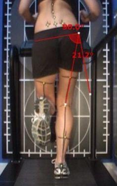 Gait re-training for 'Runner's Knee' | RunningPhysio