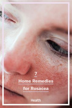 Awesome beauty tips information are readily available on our internet site. Check it out and you wont be sorry you did. #beautytips Natural Hair Mask, Natural Hair Styles, Natural Beauty, How To Get Rid Of Acne, How To Remove, Home Remedies For Rosacea, Natural Remedies, Skin Tag Removal, Get Rid Of Blackheads