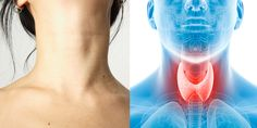 9 Signs Your Thyroid Is Out Of Whack