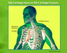 Learn more about Rib Cartilage Injury or Rib Cartilage Fracture, Possible Causes, Risk Factors, Symptoms, Diagnosis, Treatment.