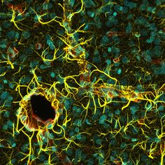 Rat cerebral cortex with astrocytes' (yellow) endfeet wrapping around blood vessels (red). Cell nuclei are cyan.