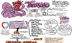 ¿La matamos de un susto? Conocimiento actual sobre el Takotsubo, SEC revisión 2016