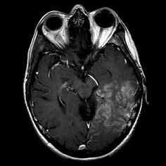 Lefttemporal-occipital region gyral enhancement. In this clinical setting, the appearance suggests SMART syndrome (stroke-like migraine attacks after radiation therapy), an uncommon complication of cerebral irradiation.