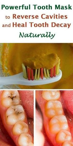 Powerful Tooth Mask to Reverse Cavities and Heal Tooth Decay Naturally