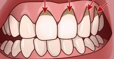 Your mouth is your lifeline. Good oral hygiene is important, and for some people, even brushing and flossing twice daily is not enough to stave off gum disease. Gum Health, Oral Health, Health And Wellness, Health Tips, Herbal Remedies, Health Remedies, Home Remedies, Natural Remedies, Oil Pulling