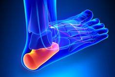 Ostroga piętowa: jak leczyć przykrą chorobę stóp