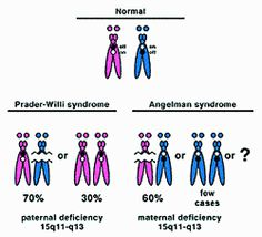 This conceptual image differentiates normal chromosome 15s from Prader-Willi Syndrome and from Angelman Syndrome.