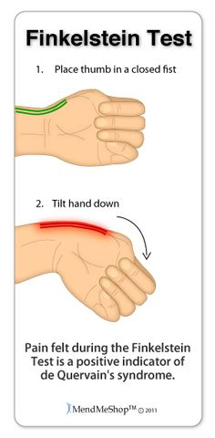 de Quervains Tenosynovitis | If you are experiencing wrist pain, a common test used to diagnose it is the Finkelstein Test
