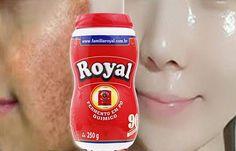 Como Usar o Pó Royal Para Remover Manchas Escucomo usar pó roialras nas Pele! Baby Skin, Beauty Secrets, Beauty Hacks, Beauty Care, Hair Beauty, Remover Manchas, Les Rides, Peeling, Body Care