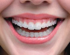 Ceramic treatment is a type of braces which consisit of tooth colored objects which helps to align the uneven teeth pattern. Mbchen provide this treatement in very low cost by highly experienced dentist. Types Of Braces, Braces Tips, Dental Braces, Teeth Braces, Gold Braces, Hacks, Ceramic Braces, Dental Health, Ceramic Pottery