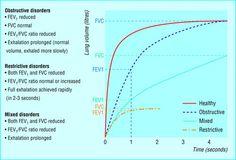 Physiopathologie pulmonaire. Spirometry: FEV1/ FVC Ratio.