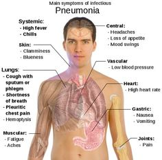 What Are the Symptoms of Pneumonia? You mainly get the disease from inhaling dirty air that contains the bacteria or virus that brings Pneumonia. When you incur the disease you will begin to experience more cough attacks over the days. Respiratory Therapy, Respiratory System, Natural Asthma Remedies, Bronchitis Remedies, Natural Cures, Lunge, Medical Information, Health Education, Midwifery