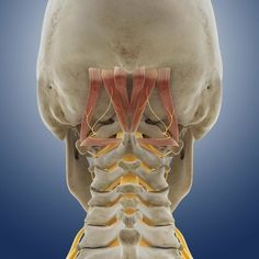 Suboccipital muscles and nerve, artwork - Stock Image - - Science Photo Library Neck And Shoulder Exercises, Neck Exercises, Stretches, Neck Headache, Headache Relief, Headache Remedies, Neck Muscle Anatomy, Neck Pain Treatment, Bones