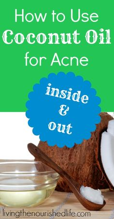 Coconut Oil for Acne - The Nourished Life