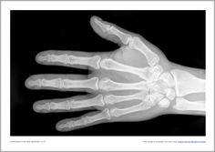 X-rays photo set (SB8272) - SparkleBox PDF @ http://www.sparklebox.co.uk/previews/8251-8275/sb8272-x-rays-photo-set.html#.VZRsWxtVhBc  Print on transparency for realistic look.
