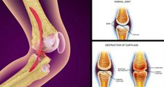 HEAL YOUR KNEES AND REBUILD YOUR BONES AND JOINTS WITH THIS INCREDIBLE RECIPE