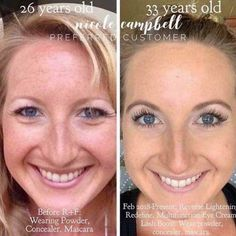 Rodan + Fields gives you the best skin of your life and the confidence that comes with it. Created by Stanford-trained Dermatologists, we understand skin. Our easy-to-use Regimens take the guesswork out of skincare so you can see transformative results. Rodan Fields Lash Boost, Rodan And Fields Redefine, Multifunction Eye Cream, Rodan And Fields Reverse, Age Rewind, Rodan And Fields Consultant, Aging Backwards, Uneven Skin Tone, Skin Care Regimen