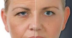 Lack of sleep, excessive exposure to ultraviolet rays and antioxidants deficiency- all lead to wrinkles. However, there is a natural soluti...