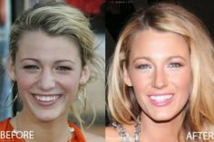 Blake Lively Nose Job Before And After - http://www.celeb-surgery.com/blake-lively-nose-job-before-and-after/?Pinterest