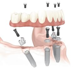 In Advanced Dentistry Clinic Asensio we can offer you the latest dental implant treatment performed by qualified professionals. This treatment allows us to replace dental pieces with a fixed denture and without a palate. Both upper and lower arches can be replaced with fixed prosthesis on the same day by using only FOUR implants. This …