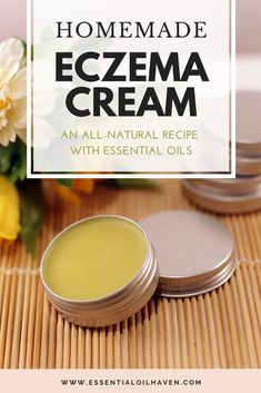 Homemade Eczema Cream with Calendula Herbal Oil Homemade Eczema Cream Recipe using Essential Oils and all natural ingredients. Eczema Remedies, Natural Remedy For Eczema, Natural Healing, Natural Remedies, Herbal Remedies, Natural Oils, Natural Skin, Essential Oils For Eczema, Salve Recipes