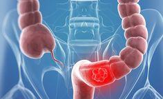 M2-PK. Νέα Εξέταση για τον Καρκίνο του Παχέος Εντέρου