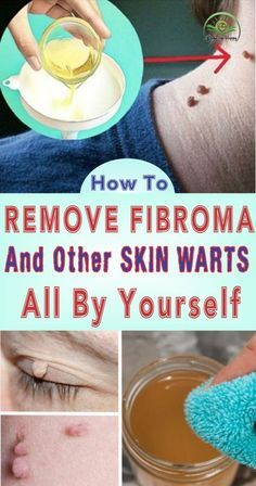 How to Remove Fibroma and Other Skin Warts All By Yourself? - HealthyOne