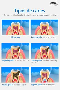 Dental Assistant Study, Dental Hygiene Student, Dental Art, Dental Anatomy, Medical Anatomy, Dental Health, Oral Health, Dental Posters, Dentist Humor