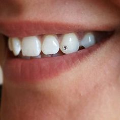 Teeth Jewelry Service Need a Dental Clinic? We Offer Reliable, Comprehensive Dental Care Service for Everyone. Specialized Dental Care Experts Ready to Help You with Your Dental Issues. Piercing Tattoo, Ear Piercings, Dental Jewelry, Tooth Jewelry, Tooth Extraction Aftercare, Diamond Teeth, Tooth Diamond, Tooth Gem, Teeth Implants