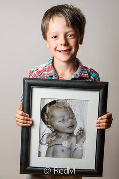 Around 1 out of every 10 babies born in the U.S. is premature. 17 Photos by Red Methot. Felix born at 24 weeks!