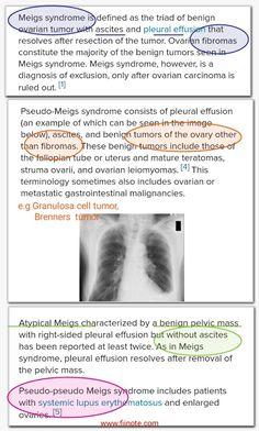Meig Syndrome Pseudo Meig Syndrome Pseudo Pseudo Meig