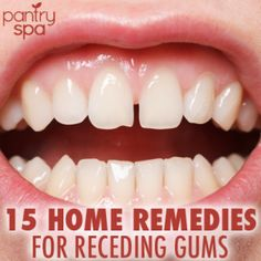 15 Home Remedies for Receding Gums (Natural DIY At Home Tips!)                              http://www.pantryspa.com/beauty-remedies/mouth-remedies/15-home-remedies-for-receding-gums-natural-diy-at-home-tips