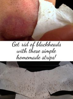 get rid of blackheads with these simple homemade strips